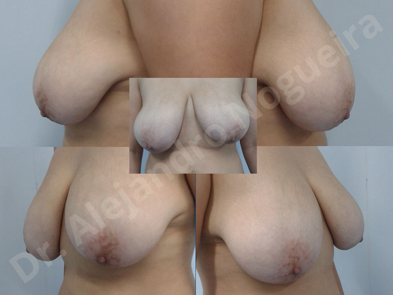 Asymmetric breasts,Breast implants animation muscle flex deformity,Breast implants capsular contracture,Breast implants displacement malposition,Breast implants double bubble deformity,Breast implants excessive movement,Breast implants riding too high,Breast implants side boob,Breast implants visibility palpability,Cross eyed breasts,Cross eyed breasts implants,Empty breasts,Extremely large breasts,Extremely saggy droopy breasts,Large areolas,Lateral breasts,Mildly large breasts,Mildly saggy droopy breasts,Moderately large breasts,Moderately saggy droopy breasts,Narrow breasts,Pendulous breasts,Pigeon chest,Severely large breasts,Severely saggy droopy breasts,Skinny breasts,Slightly large breasts,Slightly saggy droopy breasts,Small breasts,Sunken chest,Too far apart wide cleavage breast implants,Too far apart wide cleavage breasts,Too narrow breast implants,Too wide breast implants,Tuberous breasts,Waterfall effect breast implants,Wide breasts,Anatomical shape,Anchor incision,Areola reduction,Capsulectomy,Circumareolar incision,Dual plane pocket,Inframammary incision,Internal bra capsulorrhaphy,Lower hemi periareolar incision,Round shape,Subfascial pocket plane,Tuberous mammoplasty - photo 21