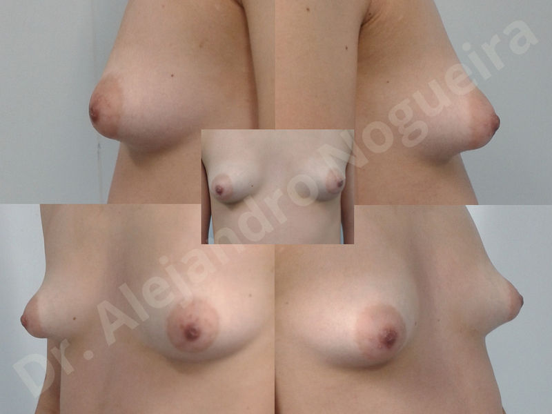 Asymmetric breasts,Breast implants animation muscle flex deformity,Breast implants capsular contracture,Breast implants displacement malposition,Breast implants double bubble deformity,Breast implants excessive movement,Breast implants riding too high,Breast implants side boob,Breast implants visibility palpability,Cross eyed breasts,Cross eyed breasts implants,Empty breasts,Extremely large breasts,Extremely saggy droopy breasts,Large areolas,Lateral breasts,Mildly large breasts,Mildly saggy droopy breasts,Moderately large breasts,Moderately saggy droopy breasts,Narrow breasts,Pendulous breasts,Pigeon chest,Severely large breasts,Severely saggy droopy breasts,Skinny breasts,Slightly large breasts,Slightly saggy droopy breasts,Small breasts,Sunken chest,Too far apart wide cleavage breast implants,Too far apart wide cleavage breasts,Too narrow breast implants,Too wide breast implants,Tuberous breasts,Waterfall effect breast implants,Wide breasts,Anatomical shape,Anchor incision,Areola reduction,Capsulectomy,Circumareolar incision,Dual plane pocket,Inframammary incision,Internal bra capsulorrhaphy,Lower hemi periareolar incision,Round shape,Subfascial pocket plane,Tuberous mammoplasty - photo 23