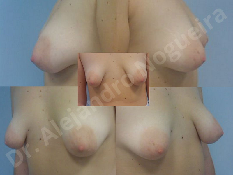 Asymmetric breasts,Breast implants animation muscle flex deformity,Breast implants capsular contracture,Breast implants displacement malposition,Breast implants double bubble deformity,Breast implants excessive movement,Breast implants riding too high,Breast implants side boob,Breast implants visibility palpability,Cross eyed breasts,Cross eyed breasts implants,Empty breasts,Extremely large breasts,Extremely saggy droopy breasts,Large areolas,Lateral breasts,Mildly large breasts,Mildly saggy droopy breasts,Moderately large breasts,Moderately saggy droopy breasts,Narrow breasts,Pendulous breasts,Pigeon chest,Severely large breasts,Severely saggy droopy breasts,Skinny breasts,Slightly large breasts,Slightly saggy droopy breasts,Small breasts,Sunken chest,Too far apart wide cleavage breast implants,Too far apart wide cleavage breasts,Too narrow breast implants,Too wide breast implants,Tuberous breasts,Waterfall effect breast implants,Wide breasts,Anatomical shape,Anchor incision,Areola reduction,Capsulectomy,Circumareolar incision,Dual plane pocket,Inframammary incision,Internal bra capsulorrhaphy,Lower hemi periareolar incision,Round shape,Subfascial pocket plane,Tuberous mammoplasty - photo 43