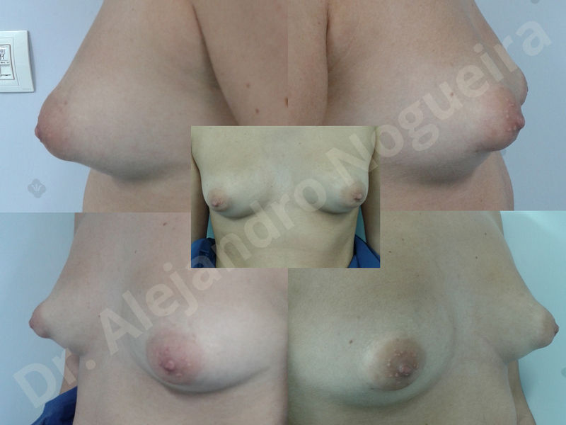 Asymmetric breasts,Breast implants animation muscle flex deformity,Breast implants capsular contracture,Breast implants displacement malposition,Breast implants double bubble deformity,Breast implants excessive movement,Breast implants riding too high,Breast implants side boob,Breast implants visibility palpability,Cross eyed breasts,Cross eyed breasts implants,Empty breasts,Extremely large breasts,Extremely saggy droopy breasts,Large areolas,Lateral breasts,Mildly large breasts,Mildly saggy droopy breasts,Moderately large breasts,Moderately saggy droopy breasts,Narrow breasts,Pendulous breasts,Pigeon chest,Severely large breasts,Severely saggy droopy breasts,Skinny breasts,Slightly large breasts,Slightly saggy droopy breasts,Small breasts,Sunken chest,Too far apart wide cleavage breast implants,Too far apart wide cleavage breasts,Too narrow breast implants,Too wide breast implants,Tuberous breasts,Waterfall effect breast implants,Wide breasts,Anatomical shape,Anchor incision,Areola reduction,Capsulectomy,Circumareolar incision,Dual plane pocket,Inframammary incision,Internal bra capsulorrhaphy,Lower hemi periareolar incision,Round shape,Subfascial pocket plane,Tuberous mammoplasty - photo 8