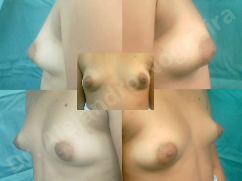 Asymmetric breasts,Breast implants animation muscle flex deformity,Breast implants capsular contracture,Breast implants displacement malposition,Breast implants double bubble deformity,Breast implants excessive movement,Breast implants riding too high,Breast implants side boob,Breast implants visibility palpability,Cross eyed breasts,Cross eyed breasts implants,Empty breasts,Extremely large breasts,Extremely saggy droopy breasts,Large areolas,Lateral breasts,Mildly large breasts,Mildly saggy droopy breasts,Moderately large breasts,Moderately saggy droopy breasts,Narrow breasts,Pendulous breasts,Pigeon chest,Severely large breasts,Severely saggy droopy breasts,Skinny breasts,Slightly large breasts,Slightly saggy droopy breasts,Small breasts,Sunken chest,Too far apart wide cleavage breast implants,Too far apart wide cleavage breasts,Too narrow breast implants,Too wide breast implants,Tuberous breasts,Waterfall effect breast implants,Wide breasts,Anatomical shape,Anchor incision,Areola reduction,Capsulectomy,Circumareolar incision,Dual plane pocket,Inframammary incision,Internal bra capsulorrhaphy,Lower hemi periareolar incision,Round shape,Subfascial pocket plane,Tuberous mammoplasty - photo 87