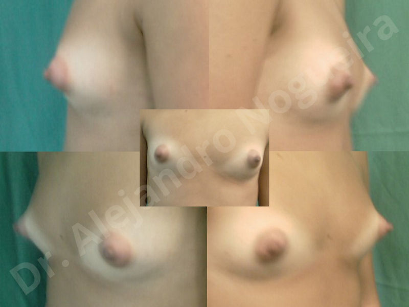 Asymmetric breasts,Breast implants animation muscle flex deformity,Breast implants capsular contracture,Breast implants displacement malposition,Breast implants double bubble deformity,Breast implants excessive movement,Breast implants riding too high,Breast implants side boob,Breast implants visibility palpability,Cross eyed breasts,Cross eyed breasts implants,Empty breasts,Extremely large breasts,Extremely saggy droopy breasts,Large areolas,Lateral breasts,Mildly large breasts,Mildly saggy droopy breasts,Moderately large breasts,Moderately saggy droopy breasts,Narrow breasts,Pendulous breasts,Pigeon chest,Severely large breasts,Severely saggy droopy breasts,Skinny breasts,Slightly large breasts,Slightly saggy droopy breasts,Small breasts,Sunken chest,Too far apart wide cleavage breast implants,Too far apart wide cleavage breasts,Too narrow breast implants,Too wide breast implants,Tuberous breasts,Waterfall effect breast implants,Wide breasts,Anatomical shape,Anchor incision,Areola reduction,Capsulectomy,Circumareolar incision,Dual plane pocket,Inframammary incision,Internal bra capsulorrhaphy,Lower hemi periareolar incision,Round shape,Subfascial pocket plane,Tuberous mammoplasty - photo 96