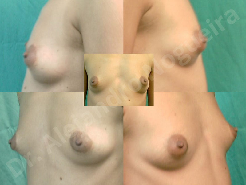 Asymmetric breasts,Breast implants animation muscle flex deformity,Breast implants capsular contracture,Breast implants displacement malposition,Breast implants double bubble deformity,Breast implants excessive movement,Breast implants riding too high,Breast implants side boob,Breast implants visibility palpability,Cross eyed breasts,Cross eyed breasts implants,Empty breasts,Extremely large breasts,Extremely saggy droopy breasts,Large areolas,Lateral breasts,Mildly large breasts,Mildly saggy droopy breasts,Moderately large breasts,Moderately saggy droopy breasts,Narrow breasts,Pendulous breasts,Pigeon chest,Severely large breasts,Severely saggy droopy breasts,Skinny breasts,Slightly large breasts,Slightly saggy droopy breasts,Small breasts,Sunken chest,Too far apart wide cleavage breast implants,Too far apart wide cleavage breasts,Too narrow breast implants,Too wide breast implants,Tuberous breasts,Waterfall effect breast implants,Wide breasts,Anatomical shape,Anchor incision,Areola reduction,Capsulectomy,Circumareolar incision,Dual plane pocket,Inframammary incision,Internal bra capsulorrhaphy,Lower hemi periareolar incision,Round shape,Subfascial pocket plane,Tuberous mammoplasty - photo 98